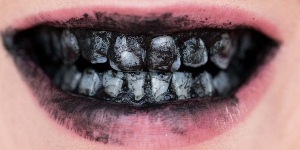 dents-charbon